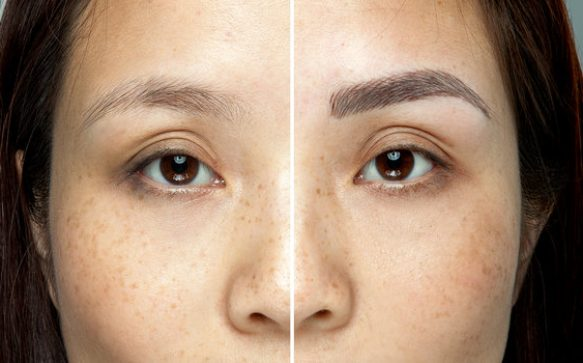What You Should Know About Microblading