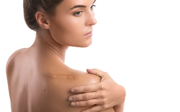 How to reduce scarring after surgery