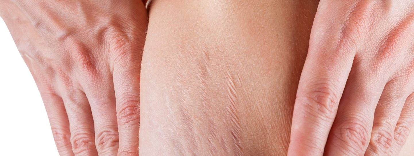 Natural Remedies for Scars and Stretch Marks